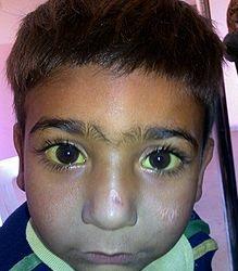 پسر بچه ای با جشم های که صلبیه اش کامل ززد شده